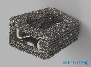 3D Medlab istSpezialist 3D-Druck im medizinischen Bereich. Komplexe Gitterstrukturen gelten als entscheidend für die Entwicklung medizinischer Implantate. (Bild: 3D Medlab)